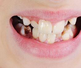 What Causes Black Stains On Kid's Teeth
