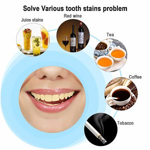 Best Ways to Whiten Your Teeth Quickly Overnight