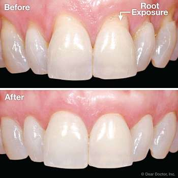 Gum Graft Surgery - Best Treatment for Receding Gums