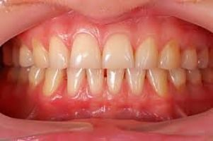 Best Ways on How to Stop Receding Gums From Getting Worse