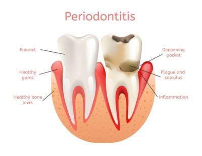 Periodontal Disease: Causes Symptoms and Treatment