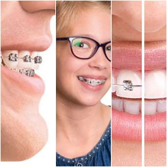 Whitening Teeth During Braces Treatment