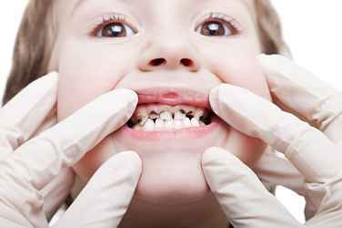 How to Prevent Tooth Decay Among Children and Toddlers