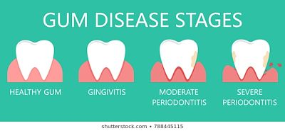 What To Do if You Have Gum Disease