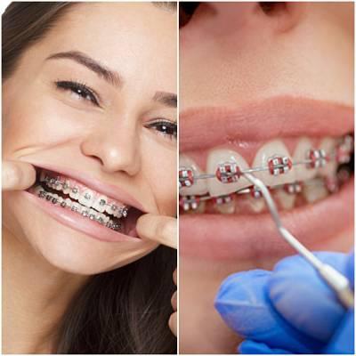when should you remove braces?